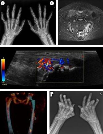 Arthritis Images_ESSR_2